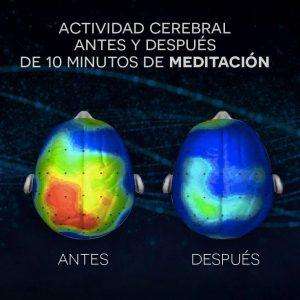 Actividad cerebral antes y después de 10 minutos de meditación